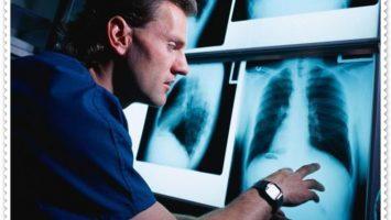 Radyolog Maaşları Ne Kadar?